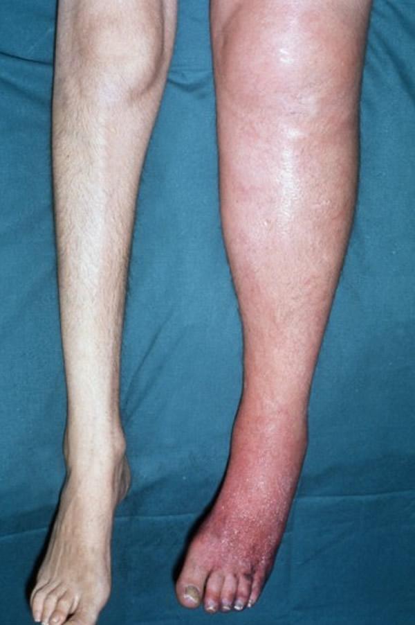 Superficial Thrombophlebitis: Background, Pathophysiology ...