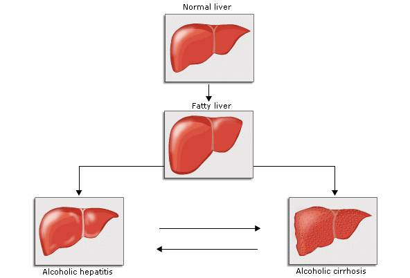 Fig 1 Spectrum of damage in alcoholic liver disease