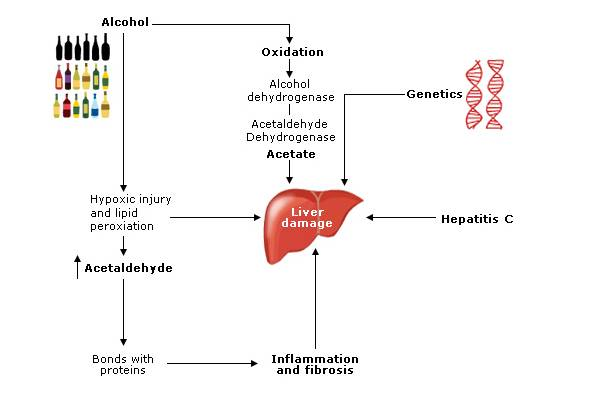Fig 1 Alcohol causes damage to the liver by various mechanisms which can be exacerbated by other factors