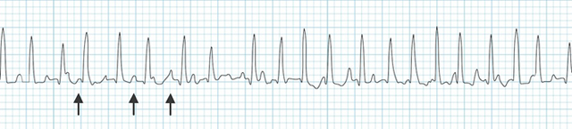 Atrial Fibrillation_Multifocal_atrial_tachycardia