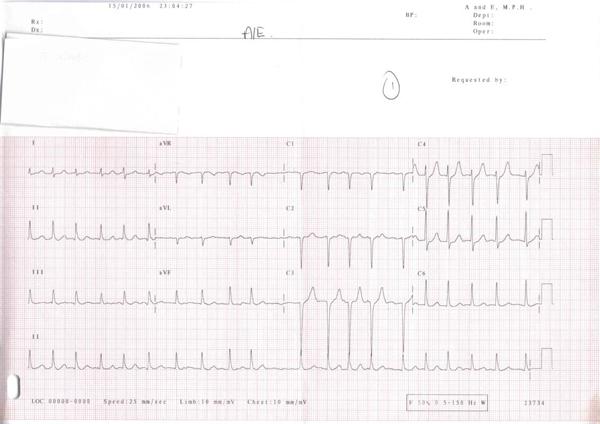 Atrial Fibrillation_lead_ECG