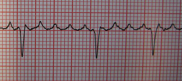 Atrial Fibrillation_multifocal
