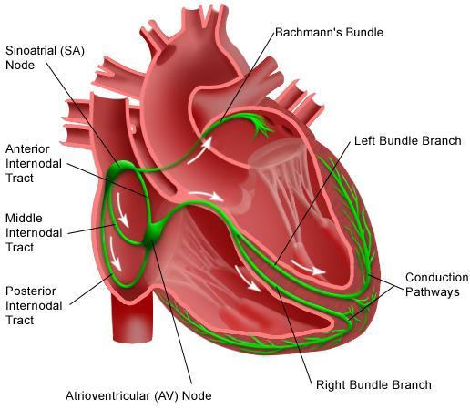 Brachycardia image1