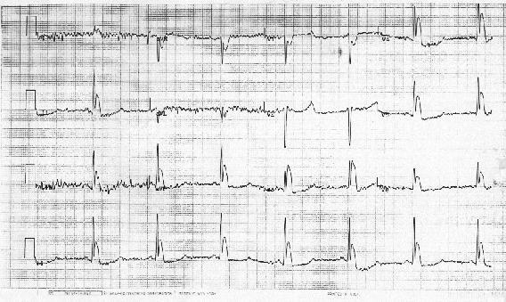 Brachycardia image2