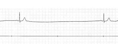 Brachycardia image3_0