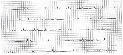 Brachycardia image4