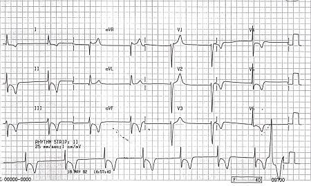 Brachycardia image5