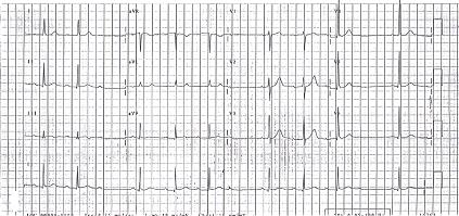 Brachycardia image6