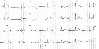 Brachycardia image7
