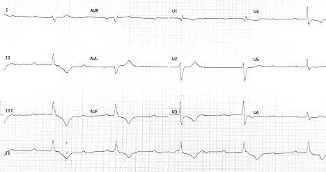 Brachycardia image8