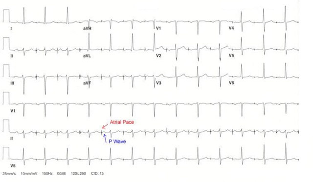 Cardiac_Implantable_AAI