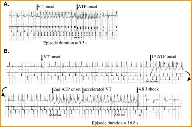 Cardiac_Implantable_ATP