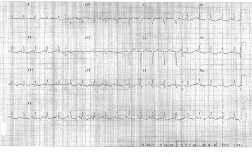 Cardiogenic4