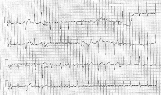 Cardiogenic6