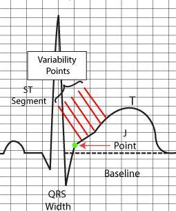 ST Elevation Without Infarction RCEMLearning - Elevation measurement