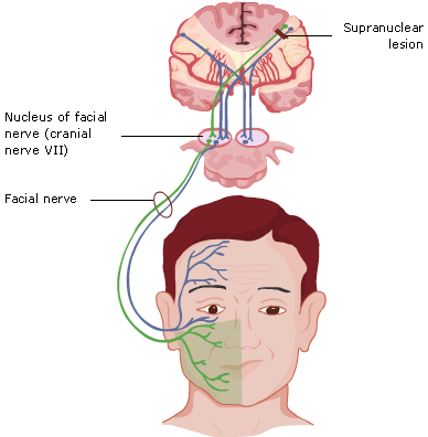 Unilateral facial palsy and nice