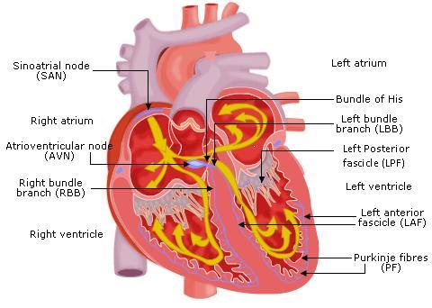 Tachycardias1