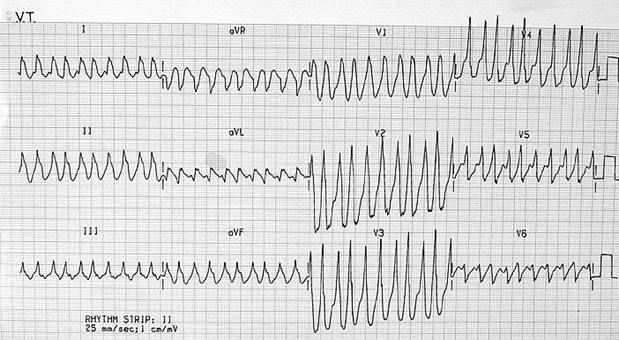 Tachycardias11