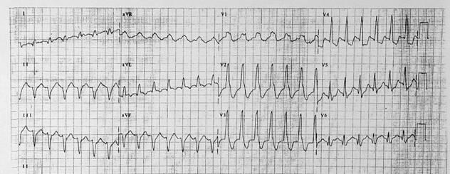 Tachycardias2
