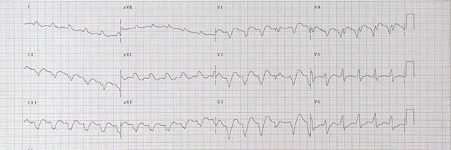 Tachycardias3