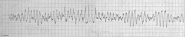 Tachycardias4