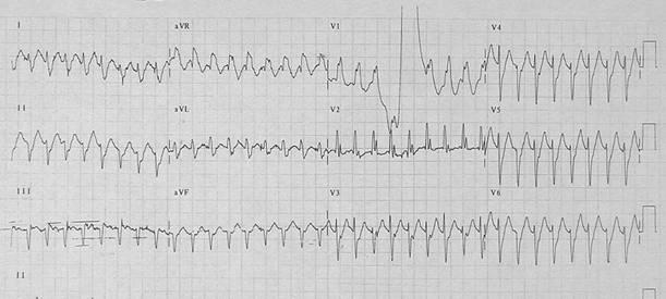 Tachycardias7