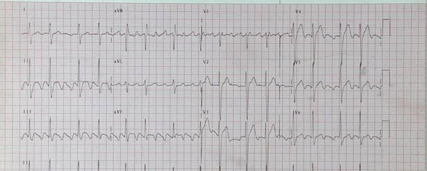 Tachycardias9