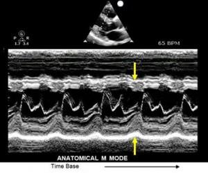 Ultrasound_Booklet014
