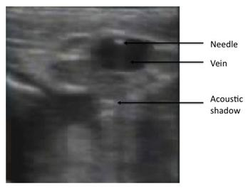 Ultrasound_Booklet093