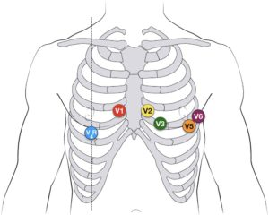 ECG placement courtesy of LITFL