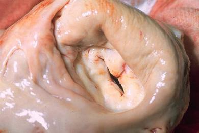 Valvular Heart Disease - Image 7