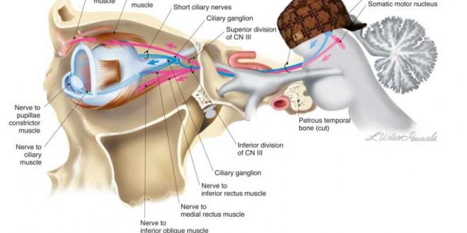 Yasmin_Sultan_-_Third_nerve_palsy_nerve_image