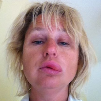 angioedema_early
