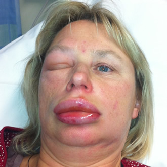 lisinopril facial edema