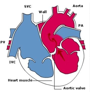 aorticstenosis