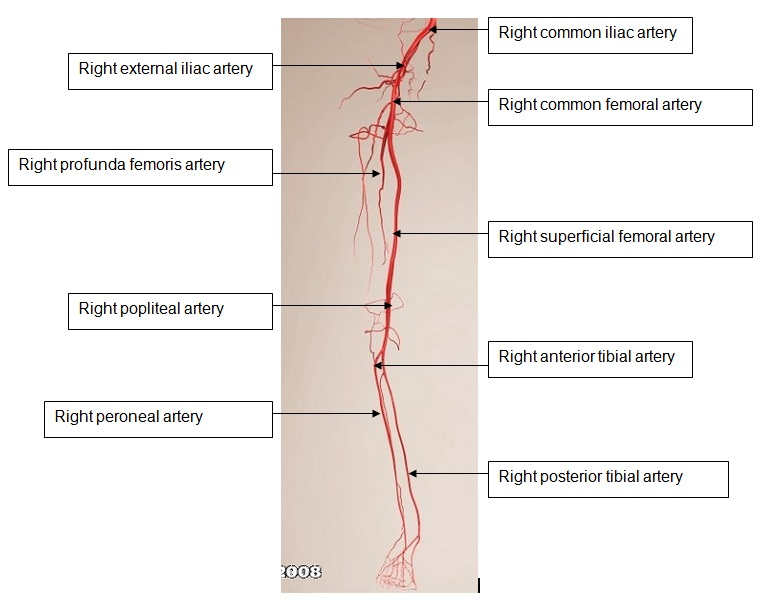 Acute Limb Ischaemia Rcemlearning