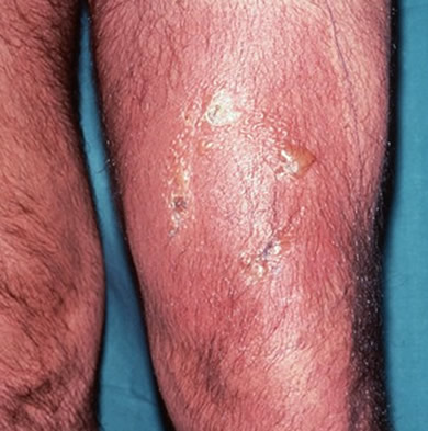 cellulitis-1