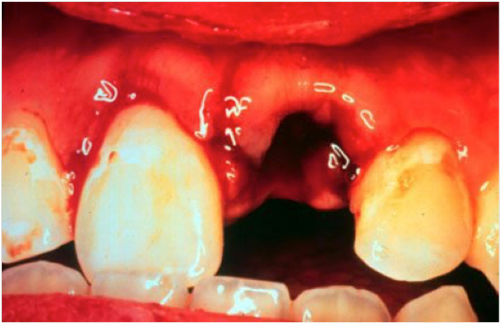 More Dental Emergencies - RCEMLearning