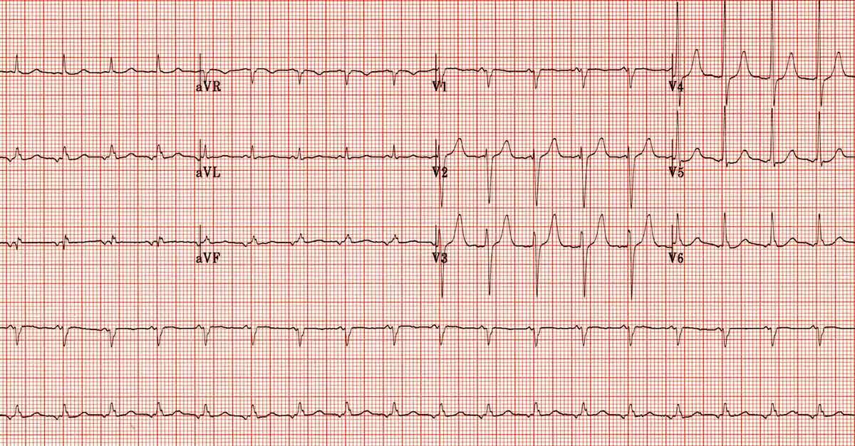 ectopic-atrial-tachycardia-inverted-p-waves