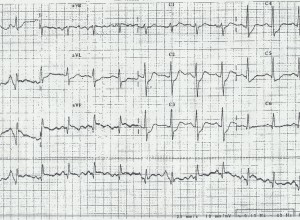 The image displays a 12 lead ECG