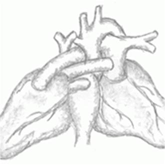 heart_transplant_1