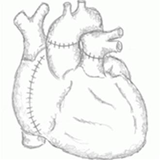 heart_transplant_2