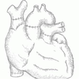 heart_transplant_3