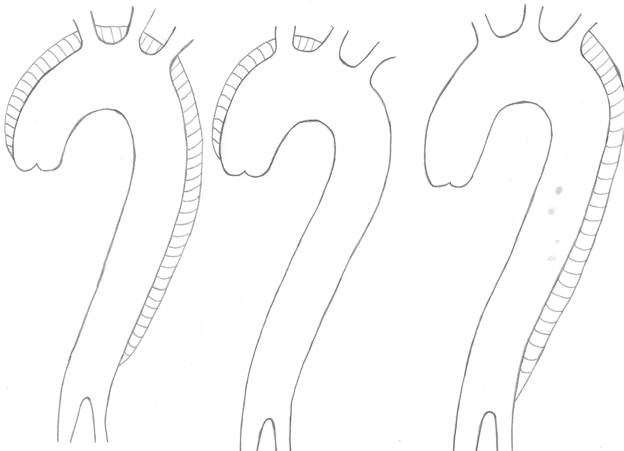 Figure 1: Classification of aortic dissection: Stanford Classification (Type A and B) and DeBakeys Classification (I, II and III)
