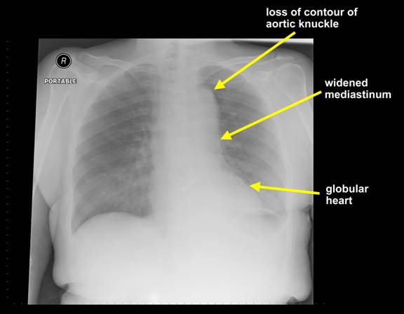 Figure 3: Other radiological features suggestive of thoracic aortic dissection