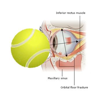 Mechanism of orbital blow-out fracture