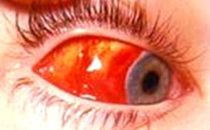 Subconjunctival haemorrhage from an orbital wall fracture with no posterior border visible.