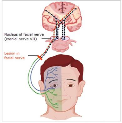 Are hot. bilateral facial nerve palsy close