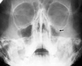 Teardrop sign on left indicating an orbital blow-out fracture