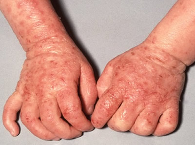 impetiginous_dermatitis